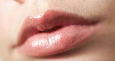 7 Tips dan Cara Mudah Mengatasi Bibir Kering dan Pecah – Pecah