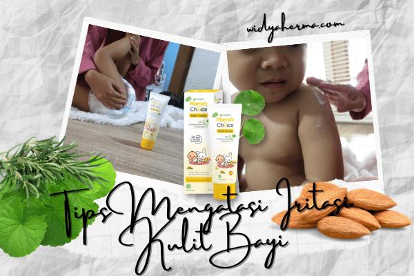 krim untuk iritasi kulit bayi karena pampers