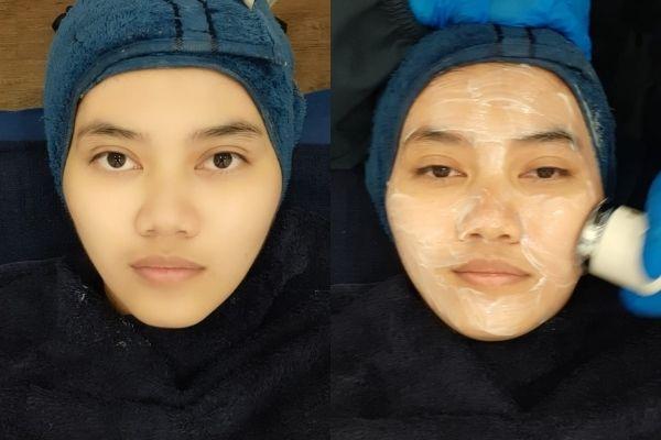 klinik kecantikan bagus bandung